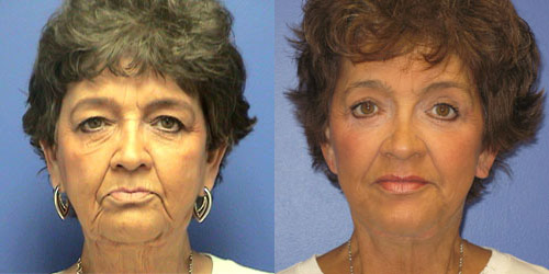 face lift before after
