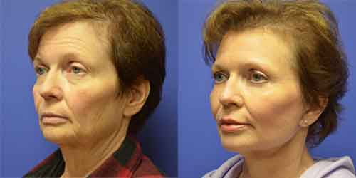 facelift surgery before and after pictures