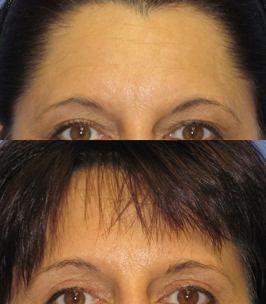 Eyebrow lift before and after photo